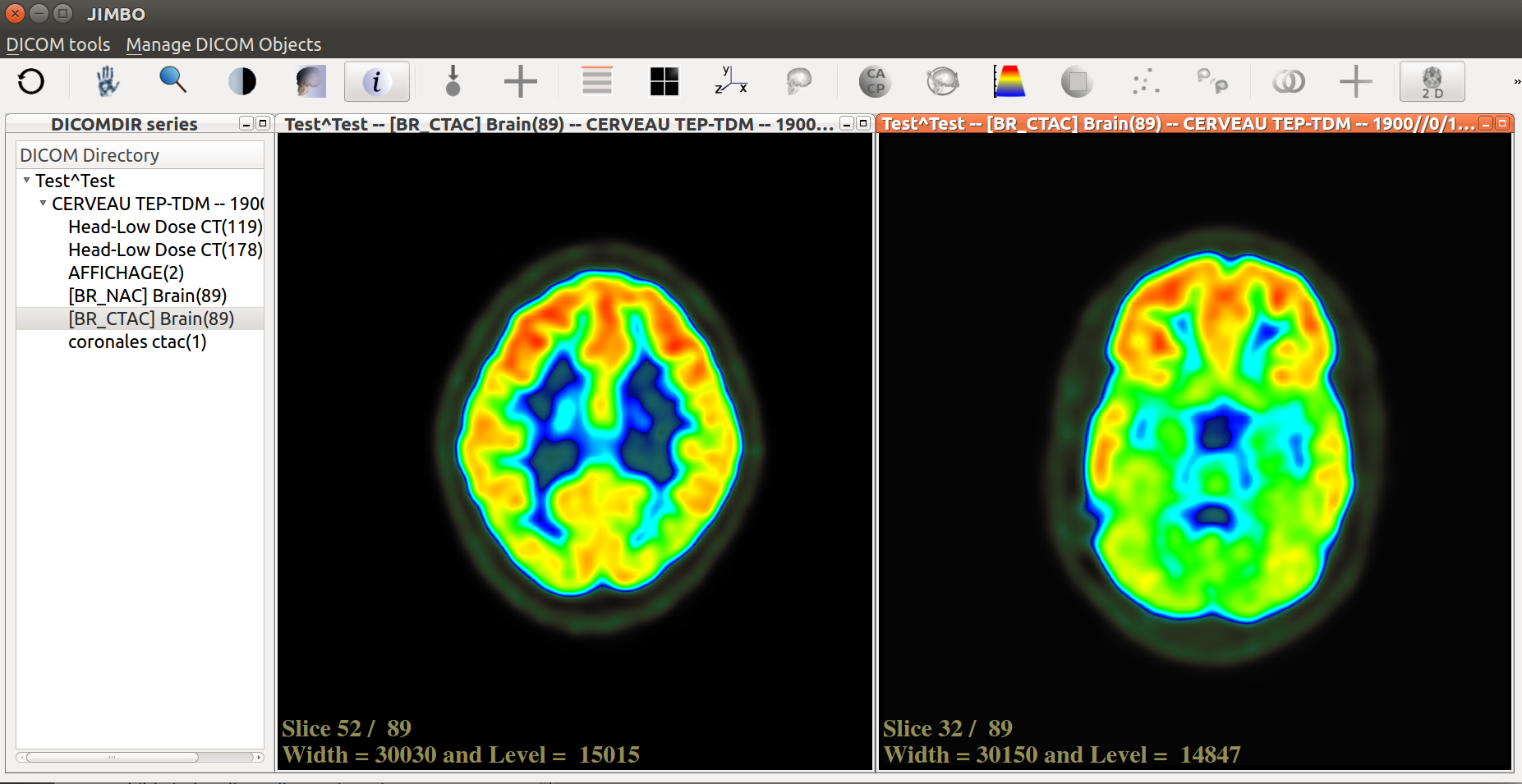 Browsing a series of DICOM images